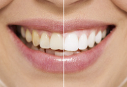 Blanqueamiento Dental 20% descuento en Octubre