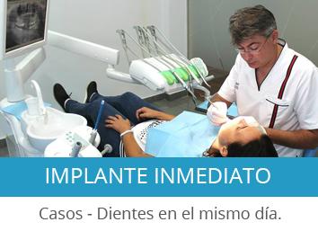 implante-inmediato