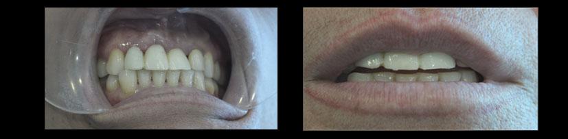 Foto de Implante Dental Inmediato. Clínica Dental experta en odontología.