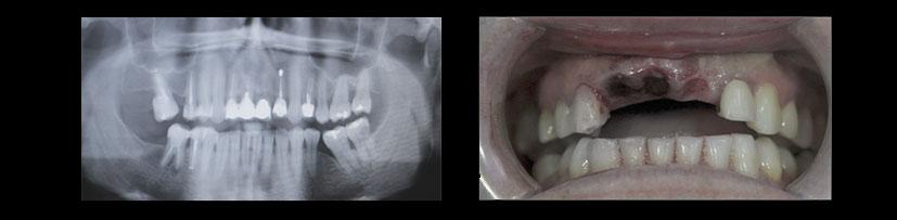 Foto de Implante Dental Inmediato. Clínica Dental experta en odontología