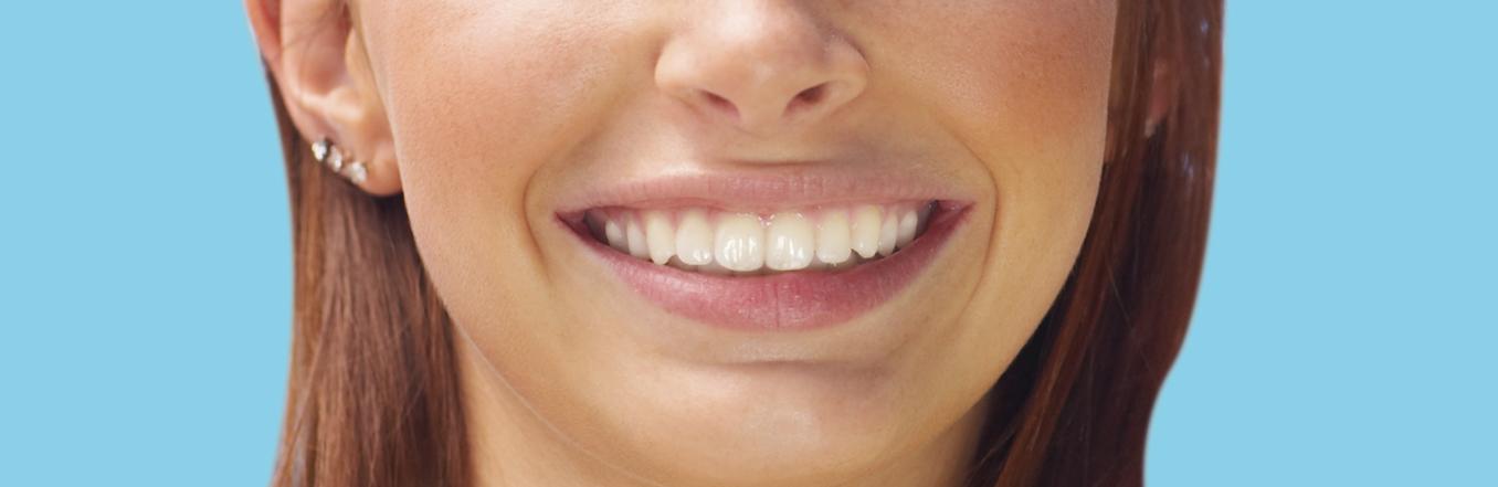 sonrisados