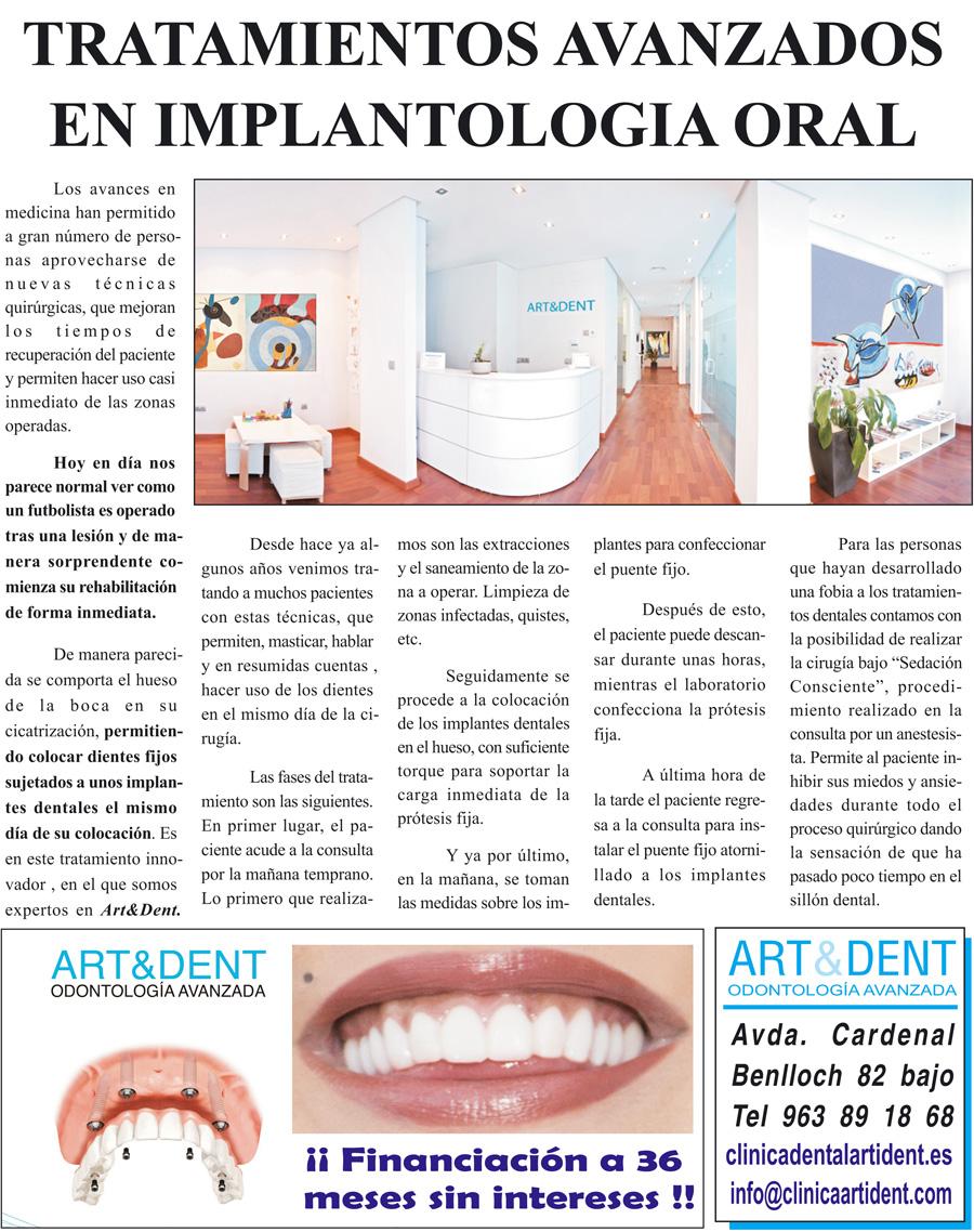 Tratamientos avanzados de implantología dental