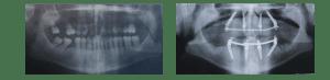 Técnica sencilla de implantología moderna