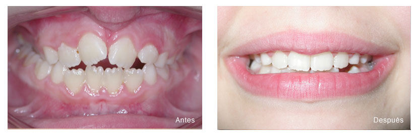 Ortodoncia infantil - clínica dental en valencia
