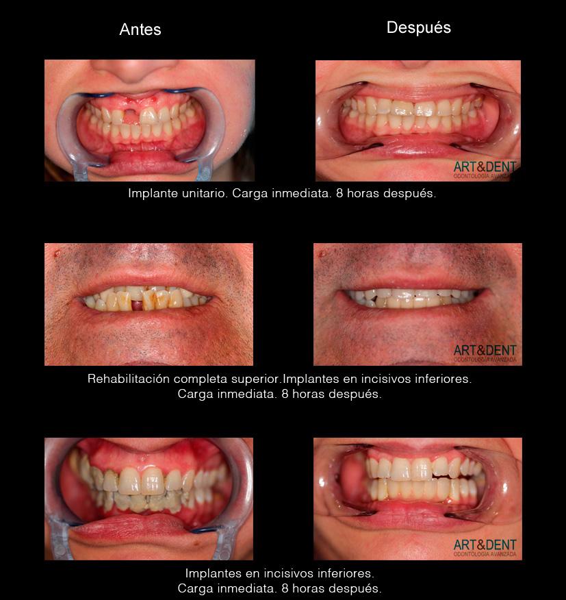 Ejemplos de implantes dentales. Antes y después.