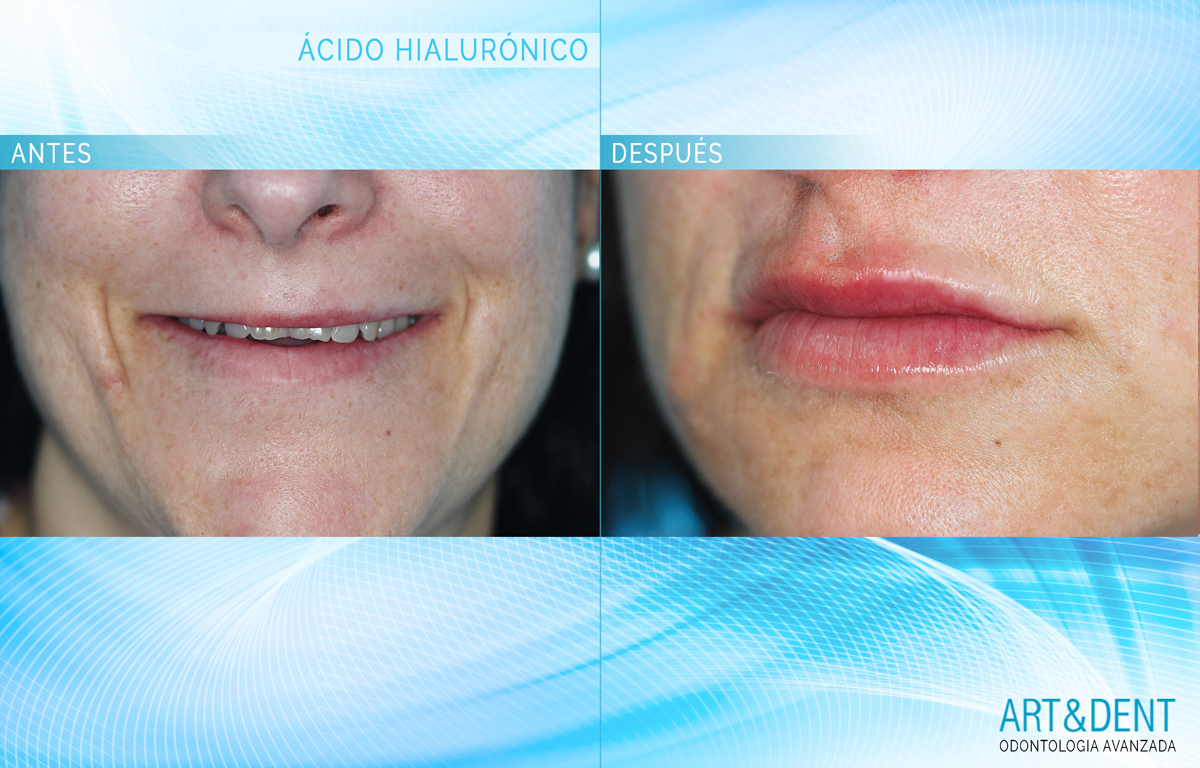 ACIDO-HIALURONICO estética dental