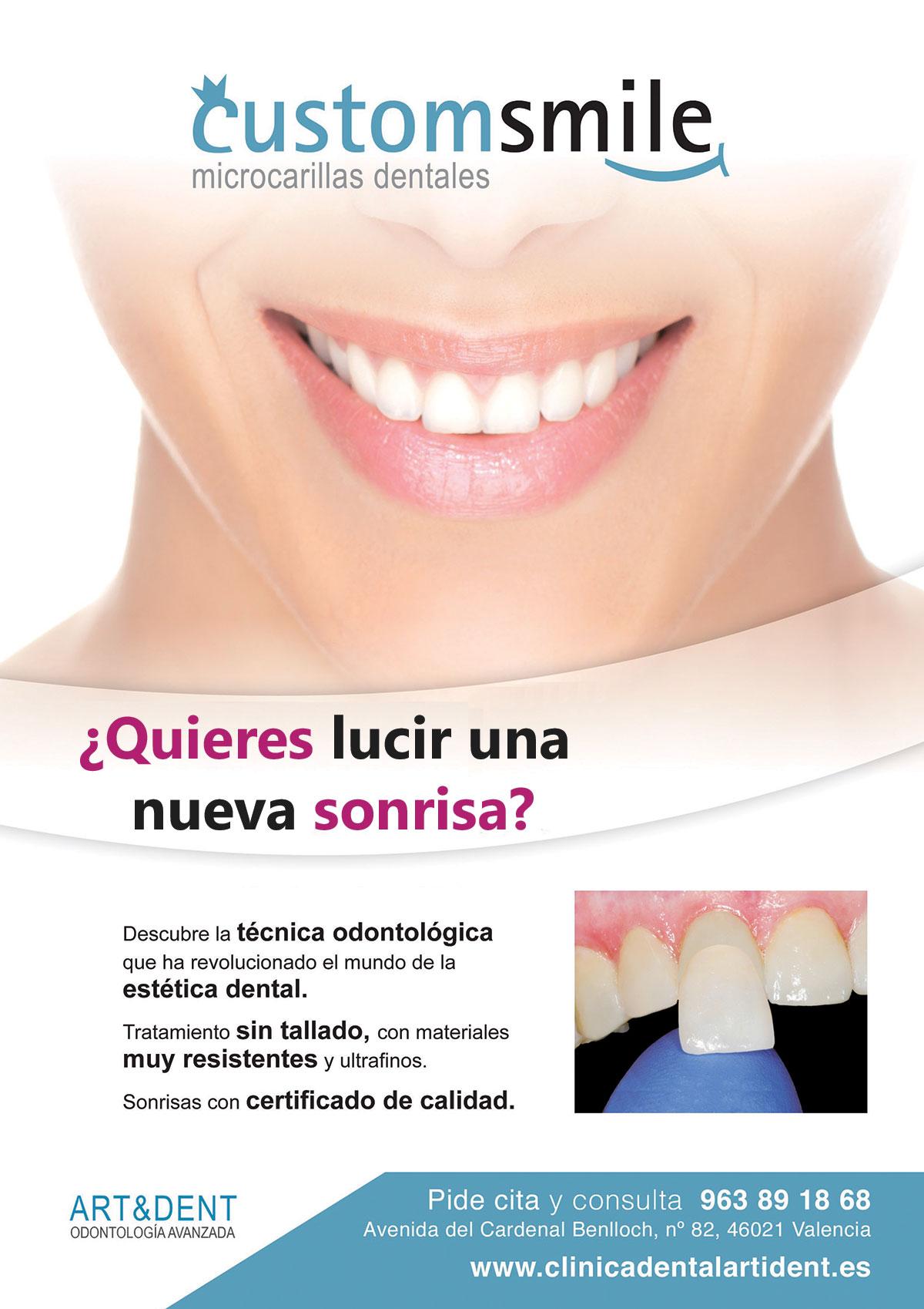 Microcarillas dentales Custom Smile